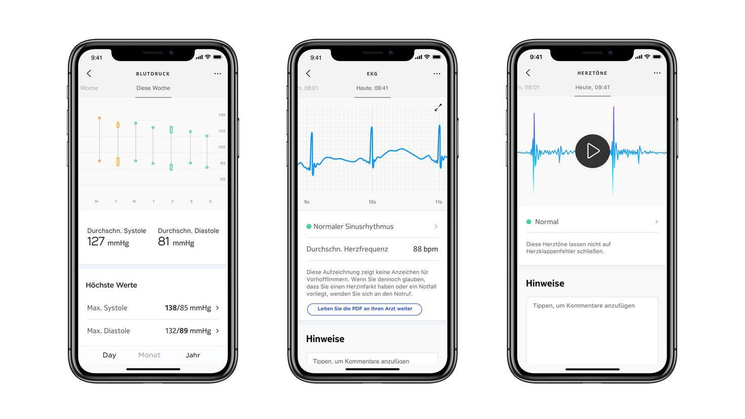In der App sind alle gemessenen Daten aufbereitet und ablesbar.