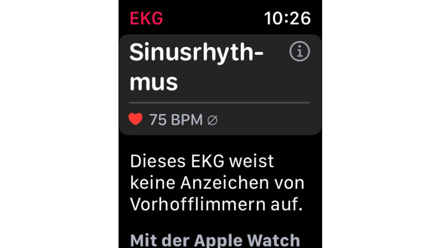 Apple Watch EKG-App