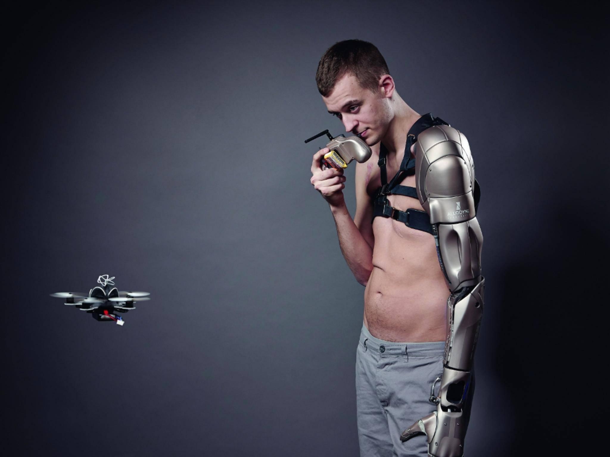 """Der Carbon-Arm von James Young ist der """"Metal Gear Solid""""-Figur Naked Snake nachempfunden."""