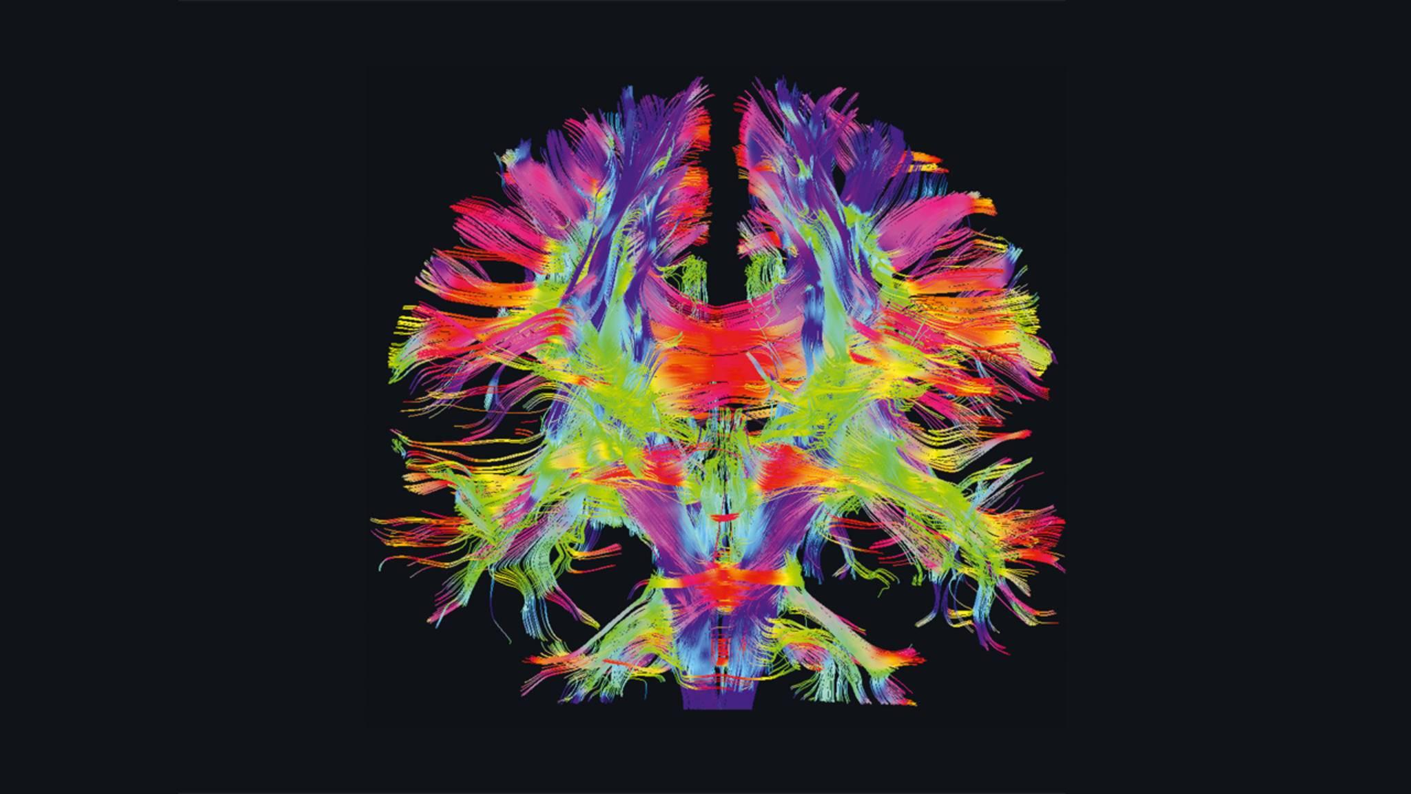 Geistige Leuchte: Nervenfasern verbinden die verschiedenen Regionen des Gehirns, hier sichtbar gemacht mit farbiger 3D-Diffusionsbildgebung.