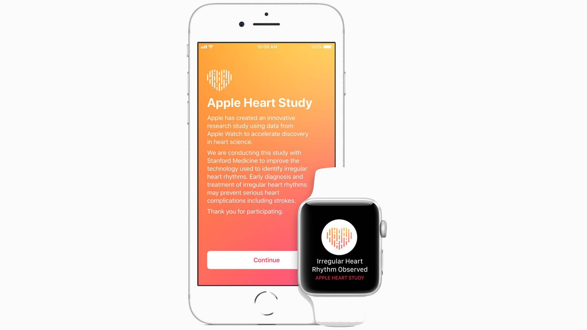 Eine Erweiterung für die Apple Watch namens Apple Heart Study soll zukunftsweisend sein.