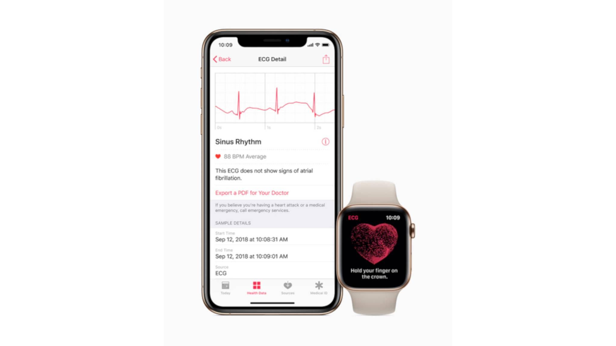 Mit watchOS 5.1.2 ist jetzt auch die EKG-App auf der Apple Watch verfügbar – vorerst aber nur in den USA.