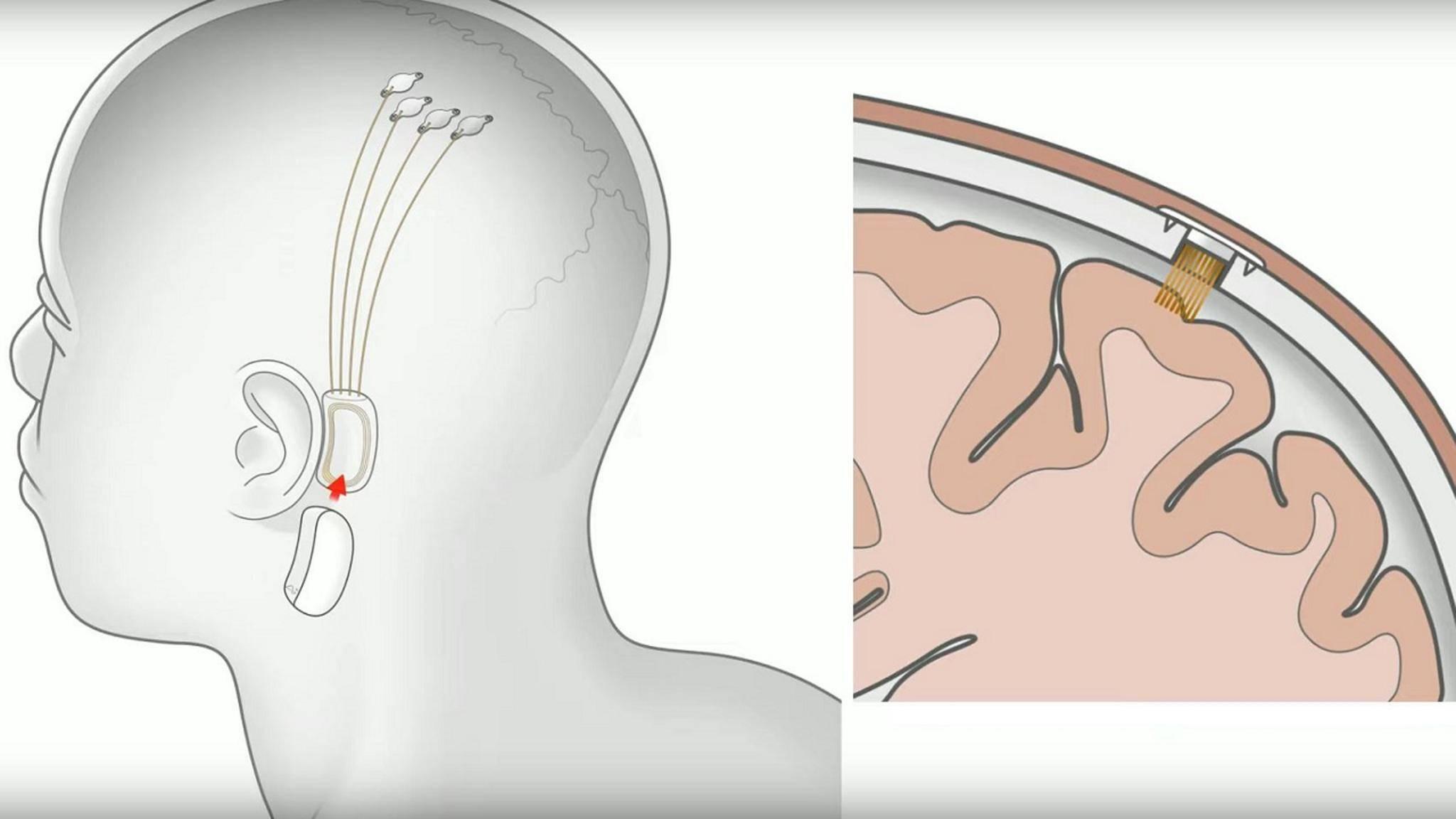 N1-Implantat mit Sensor und Fäden