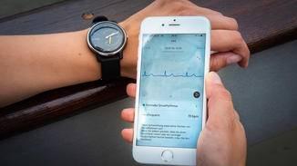 Die Messung kann live am Smartphone mitverfolgt werden.